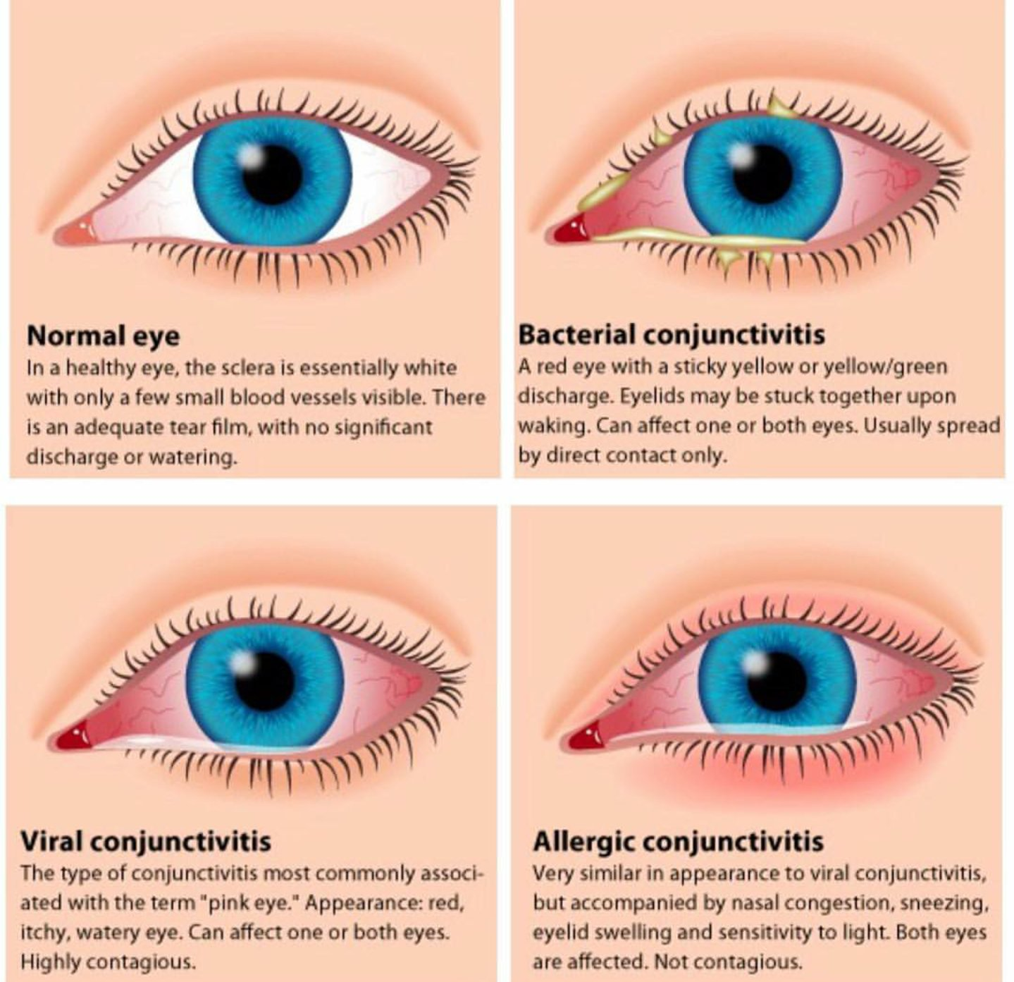 How to treat conjunctivitis without risk to health 28